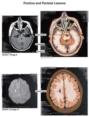 Pontine and Parietal Lesions