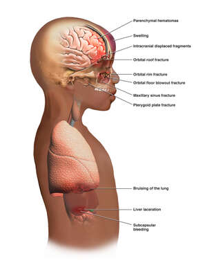 Side View of a Boy's Torso with Post-accident Injuries to the Brain and Thorax
