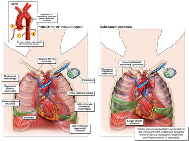 Pre-existing Cardiac Disease with Overlaying Traumatic Vascular Injury