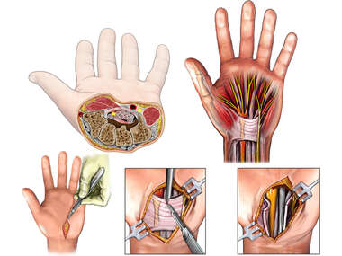 Left Hand Carpal Tunnel with Surgical Release