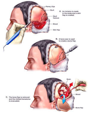 Brain Surgery - Craniotomy with Evacuation of Hematoma