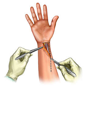 Incision for A Volar Approach