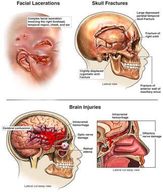 Accident-related Head Injuries