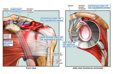 Left Shoulder Injuries: Pre-operative Condition
