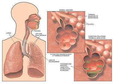 Chemical Inhalation Resulting in Lung Damage
