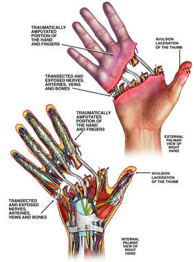 Traumatic Amputation of Hand and Fingers