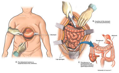 Gastrojejunostomy, Bowel Resection and Hernia Repair Procedure