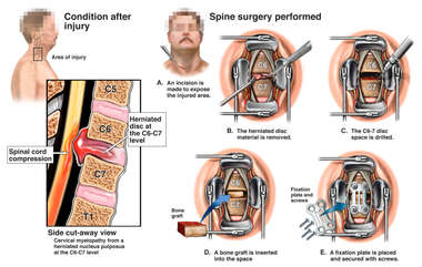 Cervical Spine Injury with Surgical Discectomy and Fusion