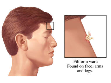Filiform Warts