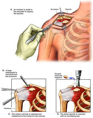 Right Shoulder Surgical Repairs