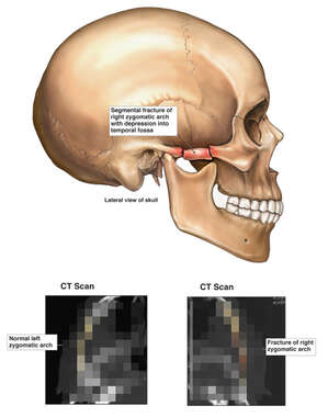 Right Zygomatic Arch Fracture