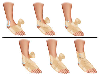 Ace Bandage Appication-Sprained Ankle
