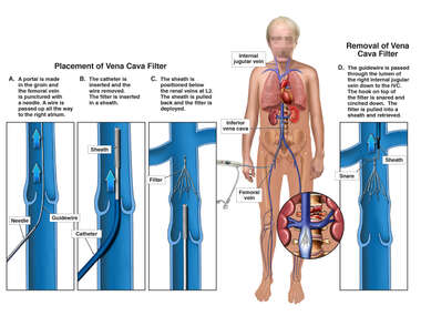 Placement and Removal of IVC Filter