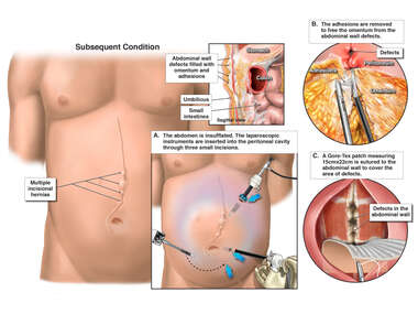Laparoscopic Repair of Incisional Hernias
