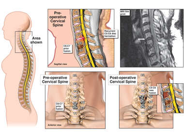 Pre-operative and Post-operative Cervical Spine