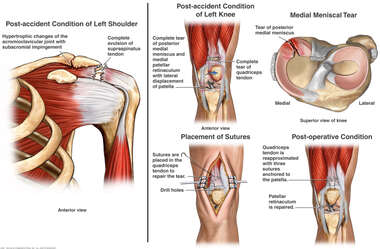 Shoulder and Knee Injuries with Surgical Repair of the Knee