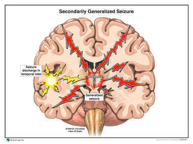 Secondary Generalized Seizure