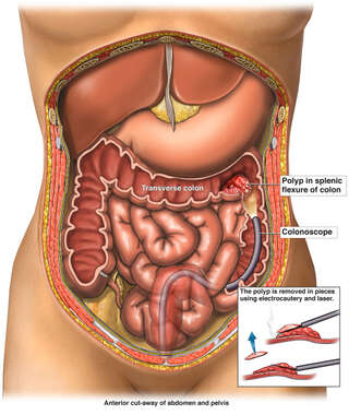 Colonoscopy with Removal of Intestinal Polyp
