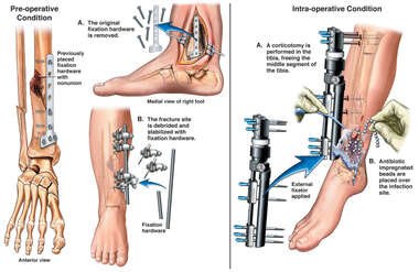 Nonunion of Tibial Fracture with Application of External Fixator