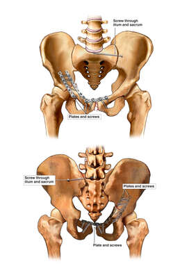 Anterior and Posterior Pelvis with Post-operative Condition