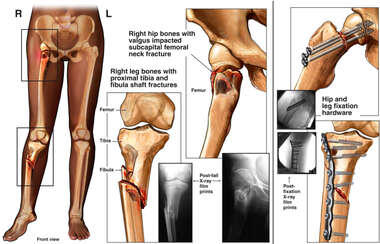 Hip and Leg Injury Fixation
