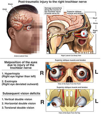 Injury to the Right Eye with Vision Deficits