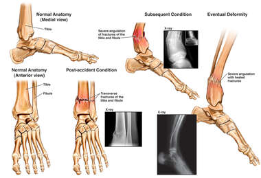 Left Lower Leg Fractures with Subsequent Deformity