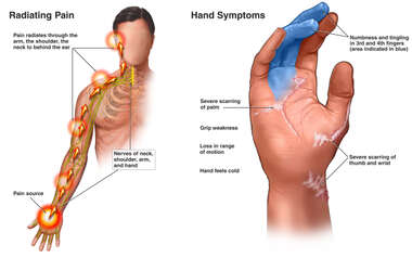 Injuries of the Right Hand