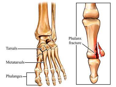 Phalanx Fracture of the Foot