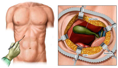 Open Exposure for Surgical Cholecystectomy
