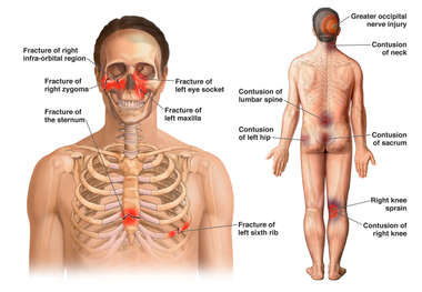 Anterior and Posterior Male Figures with Fractures to the Face, Sternum, Ribs, and Posterior Contusions