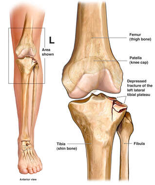 Left Knee Tibial Plateau Fracture