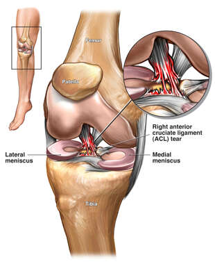 Right Knee Injury