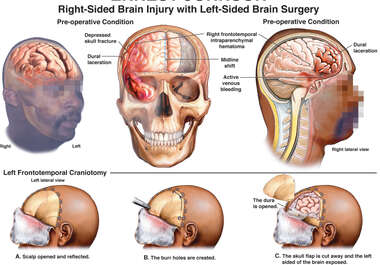 Right-Sided Brain Injury with Left-Sided Brain Surgery