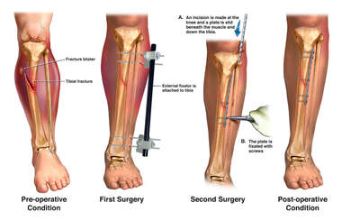 Left Lower Leg Fractures with External and Internal Fixation Surgeries