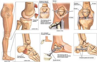 Fractures of the Knee and Foot with Surgical Placement of K-wires, Plates and Screws