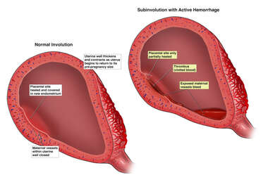 Subinvolution with Active Hemorrhage
