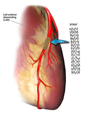 Stent Placement in the Left Anterior Descending Artery