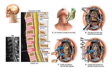 Cervical Spine Injuries with Double Level Anterior