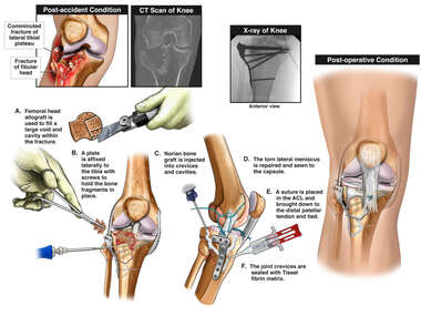 Right Knee Injuries with Initial Surgical Repairs