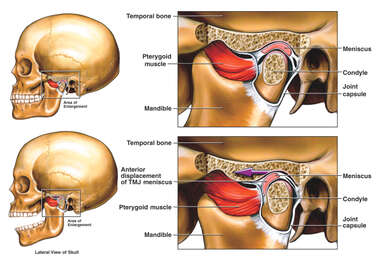 Anterior Displacement of the Left Temporomandibular Joint (TMJ)