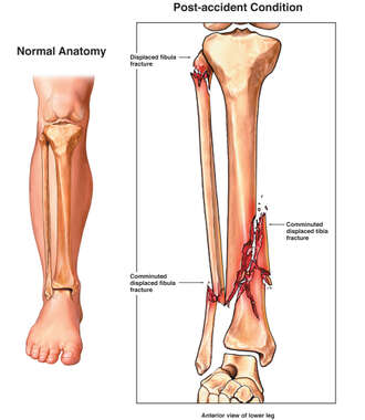 Comminuted and Compound Right Lower Leg Fractures (Pilon Fracture)