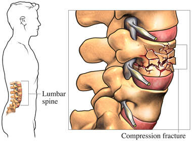 Lumbar Compression Fracture
