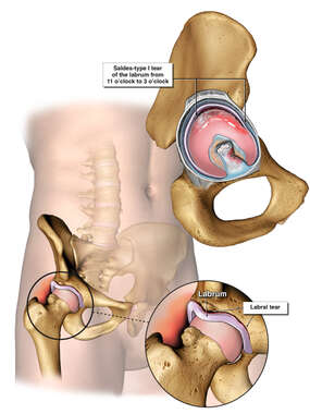 Right Hip Injuries