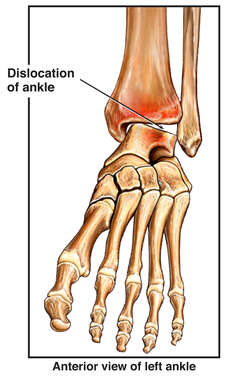 Dislocation of the Left Ankle
