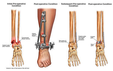 Lower Left Leg Fractures with Placemement of an External Fixator
