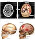 Head and Brain Injuries