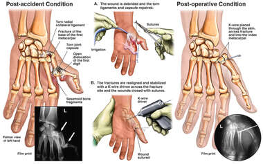 Left Thumb Fracture Fixation