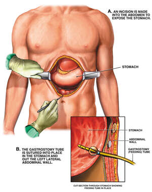Placement of Gastrostomy Tube