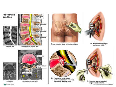 Lumbar Spine Injuries with Microsurgical Discectomy at L5-S1